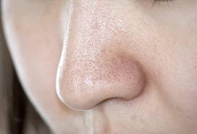 いちご鼻の改善に効果的な美顔器はどれ?人気があるおすすめを集めました!