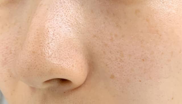 しみ、そばかすを消す美顔器の選び方!効果の高い人気のおすすめはコレ!